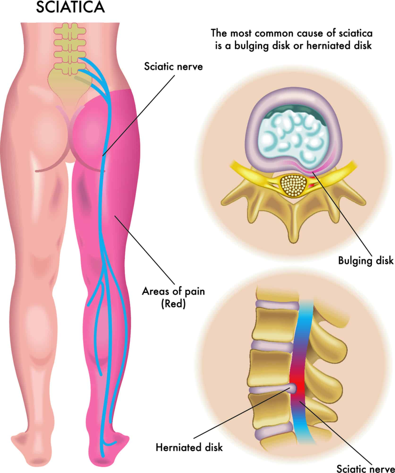 diagram of the body showing sciatica location