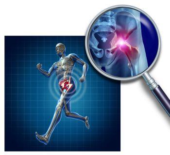 impact on hip when running