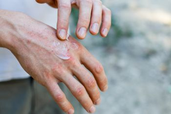 rowing blisters on hands
