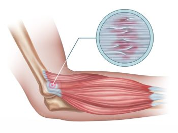 Tendonitis from using a rowing machine